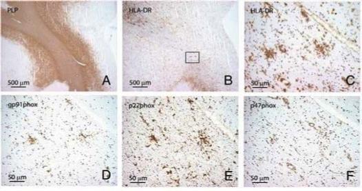 Image thumbnail for Anti-Proteolipid protein [PLPC1]