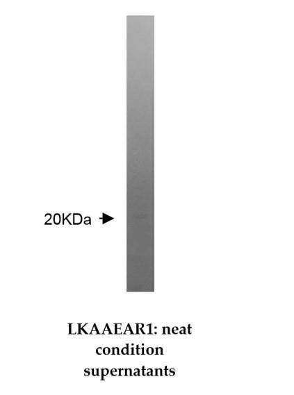 Image thumbnail for Anti-LKAAEAR1 [Z36P2C1*E7]