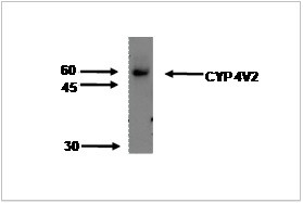 Image thumbnail for Anti-Cytochrome P450 4V2 [M29-P3B10]