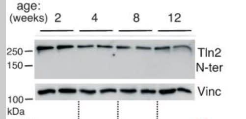 Image thumbnail for Anti-Talin2 [68E7]