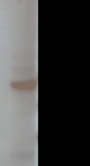 Image thumbnail for Anti-IFN-γ1 [V2P3C12*G9]