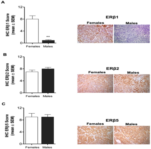 Image thumbnail for Anti-Estrogen Receptor ß5 [PPG5/25]