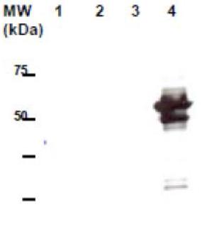 Image thumbnail for Anti-VTN4 [10H1]