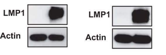 Image thumbnail for Anti-EBV Latent Membrane Protein 1 [CS 1-4]
