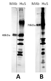 "The antigen in all lanes was gradient purified RSN-A2 virus (subgroup A). First antibodies: Lanes ""MAb"": 11-3-A3 antibody; Lanes ""HuS"": RS virus convalescent human sera. Panel A: Antigen analysed by electrophoresis using reducing conditions (SDS and mercapthoethanol). Panel B: Antigen analysed by electrophoresis using non reducing conditions (SDS only) (Gimenez et al., 1986).