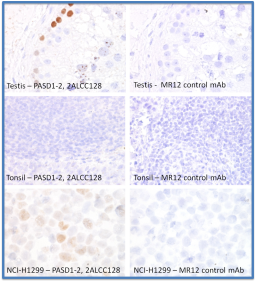 IHC FFPE