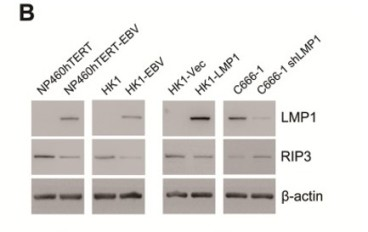Adapted from Shi et al. 2019. Theranostics. 9(9):2424-2438. PMID: 31131045. Figure. RIP3 protein expression is down-regulated in EBV(LMP1)-positive cells detected by Western blot analysis.