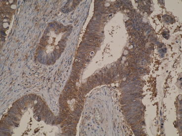 Immunohistochemistry: antibody staining of colon cancer tissue