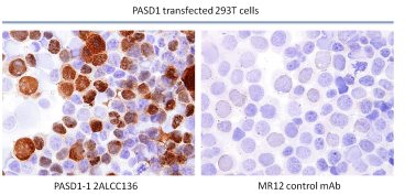 IHC frozen  Staining of 293T cells transiently transfected with cDNA expressing the long isoform of PASD1. PASD1-1 clone 2ALCC136 did not stain untransfected 293T cells; MR12 was used as a control antibody to detect any non-specific background.