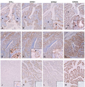 Clone PPG5/10 used to detect expression of ERβ1 in cancer tissue by IHC-P. Immunoexpression of ERs in endometrial cancers. Antibody dilution used 1:40. Tissues were classified as well (A-D), moderately (E-H) or poorly (J-M) differentiated; main panels show closely adjacent sections from three cancer blocks to allow direct comparisons. Source: Collins et al. 2009. BMC Cancer. 9:330. PMID: 19758455.