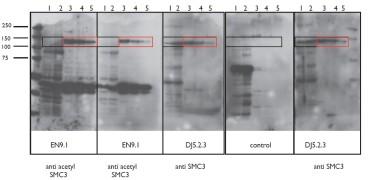 Figure. Immoblots using Anti-Acetyl SMC3 [EN9.1] and Anti-SMC3 [DJ5.2.3]. DJ5.2.3 immunoblots all forms of SMC3 while EN9.1 immunoblots only the Acetyl SMC3.
