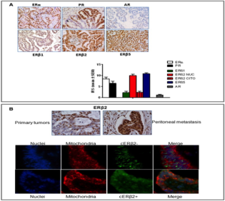 Clone 57/3 used to detect expression of ERβ2 in ovarian cancer cells by Immunofluorescence. A) Representative pictures for ERα, ERβ1, ERβ2, ERβ5, PR, and AR immunostaining in LGSOC patients (magnification 20 ×) and bar chart showing levels of hormone receptor expression (mean ± SEM, n = 25). Results are expressed as IRS (Immunoreactive receptor score). B) Representative pictures showing exclusive nuclear and nuclear/cytoplasmic ERβ2 expression in primary tumor and matched peritoneal metastasis. Source: Buttarelli et al. 2017. Gynecol Oncol. 145(2):352-360. PMID: 28228232.