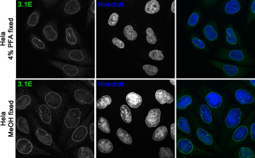 Confocal immunofluorescence images of human HeLa cell line fixed with either 4% PFA (upper panel) or cold methanol (MeOH) (lower panel) and stained with 3.1E antibody. Nuclei were visualized with Hoechst.