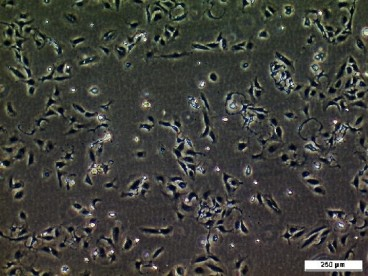 BICR 10 Cell Line. Image courtesy of the European Collection of Authenticated Cell Cultures (ECACC)