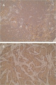A. Immunohistochemical staining of formalin-fixed, paraffin-embedded human lymph node using anti-sCTLA44 [L4P2F5*F10]. Cytoplasmic staining is shown as expected (CTLA4 is expressed in T-cells).  B. Positive cytoplasmic staining was also detected in human breast cancer sections.