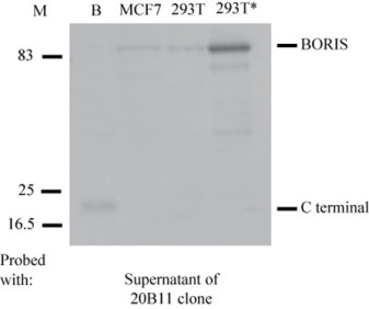 Monoclonal anti- BORIS C-terminal antibody from clone 20B11 specifically recognises the C terminal domain of BORIS, and the endogenous and exogenous BORIS protein. Cell lysates were resolved by SDS-PAGE, blotted and probed with the original mouse supernatant of the 20B11 clone. 