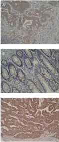 Immunohistochemistry was performed on formalin-fixed, paraffin-embedded tissue sections and showed strong cytoplasmic staining in metastatic colorectal cancer (A) and primary colorectal (C) compared to normal colon mucosa (B).
