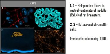 Immunohistochemistry staining using anti-Norepinephrine Transporter [AV2]