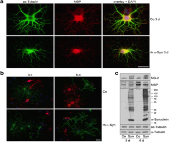 Clone 12 used to detect MBP in mouse oligodendrocytes using Immunofluorescence and Western Blot, α-Syn impairs oligodendrocyte maturation. Oligodendrocyte progenitor cells were either untreated (Co) or incubated with rh α-Syn (10 μg/ml) 2 h after plating for 3 or 6 days. Cells were subjected to immunocytochemistry using antibodies: a anti-acetylated α-tubulin (green) and anti-MBP (red); b anti-proteoglycan NG-2 (green) and anti-MBP (red). Nuclei were stained with DAPI (blue). Scale bar: 20 μm. c Exogenously applied α-Syn led to an increase in NG-2 and a decrease in MBP levels. Source: Grigoletto et al. 2017. Acta Neuropathol Commun. 5(1):37. PMID: 28482862.