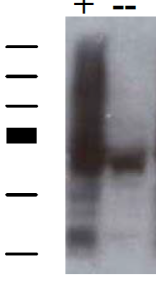 Western blot analysis on transfected (+) cos7 cell lysates using anti-SNX27 [1C6]. Untransfected lysates show endogenous detection using the same antibody (--).