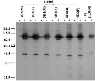 Western blot on untransfected (-) and transfected (+) HeLa cells using anti-R2 [4E6] and a number of other monoclonal antibodies. Antibodies were applied at a dilution of 1:4000