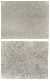 Phase contrast pictures of MCF-7/S0.5 cells grown for 7 days with 10% newborn calf serum (top panel) and grown with 10% newborn calf serum + 1 nM estradiol for 7 days (bottom panel).