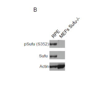 Detection by western blot of phophorylated Sufu on S352, Sufu from RPE (Retinal Pigment Epithelial) cells (Lane 1) and MEFs (Mouse Embryonic Fibroblasts) (Lane 2). Actin was used as a loading control.