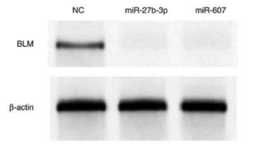 Chen et al. Molecular Medicine REPORTS 19: 4819-4831, 2019 Western blot analysis of BLM protein expression levels in PC3 cells at 24 h after miR or NC mimic transfection. NC, negative control; miR, microRNA; BLM, BLM RecQ like helicase.