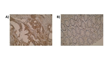 Figure. Immunohistochemistry was performed on primary colorectal tumour (A) and normal colon mucosa (B) using anti-GCSP [Z44P4C6*F5]. Cytoplasmic localisation of GCSP is observed.