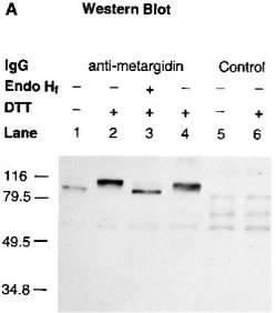 Western blot analysis using Anti-ADAM15