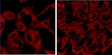 Immunofluorescence in HEK293A cells revealed with anti-ATG9A hamster 14f2 8B1  Left: FM- full growth medium  Right: ES- starved in EBSS  Judith et al.,  J. Cell Biol. 2019 218: 1634–1652