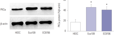 The expression of PKCα protein in three esophageal cancer cells and its statistical analysis map. Compared with HEEC, *p<0.01.  Adapted from Gu et al, Biol. Pharm. Bull. 42, 573–579 (2019)