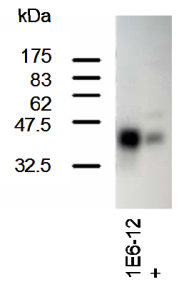 Western Blotting on 293T cell lysates (transfected) using anti-SCL [1E6]. + refers to serum from immunized mouse.