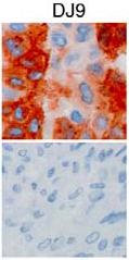 Immunohistochemistry (P) on human mesenchymal stem cells (upper) and skin fibroblasts (lower) using anti-HLA-DRB1 [DJ9]