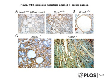 Adapted from Roepke et al. 2010. PLoS One. 5(7):e11451. PMID: 20625512 Figure. TFF2-expressing metaplasia in Kcne2−/− gastric mucosa.