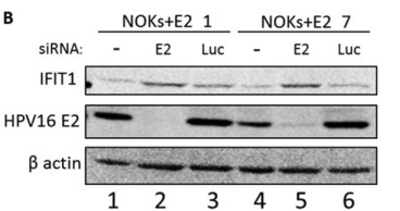 Adapted from Evans et al. 2019. J Virol; 93(4). PMID: 30518656. Figure. NOKs+E2-7 and NOKs+E2-1 cells were treated with the indicated siRNAs, and protein extracts were prepared for Western blotting. The expression levels of IFIT1 (upper panel) and E2 (middle panel) were then determined. β-Actin is shown as a loading control.
