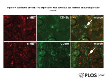 Adapted from van Leenders et al. 2011. PLoS One. 6(11):e26753. PMID: 22110593