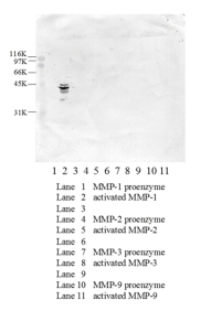 Western blotting was performed on matrix metalloproteinases (MMPs) 1, 2, 3 and 9 in both proenzyme and activated forms using anti-activated MMP1 [5C10] antibody. An approximately 40kDa protein was detected for activated MMP1.