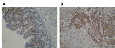 Immunohistochemistry using Anti-WSB1 [K5P2H10*E10]. (A) Cytoplasmic immunoreactivity of glandular epithelium and lamina propria cells in normal human colon. Strong staining is observed in plasma cells of the lamina propria. (B) Strong cytoplasmic immunoreactivity in primary colorectal cancer. IHC was performed on formalin-fixed, paraffin-embedded tissue sections. Antigen retrieval step is required using EDTA buffer (pH8).