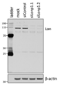 U87 cells were transfected with siRNA against the Lon protease (siLonp1.1 and siLonp1.2) or a control sequence (siControl) or transfection reagent alone (mock) and then western blotted using anti-LONP1 [LON20/H1] and a loading control antibody (β-actin). Molecular weight markers are labelled in kilodaltons
