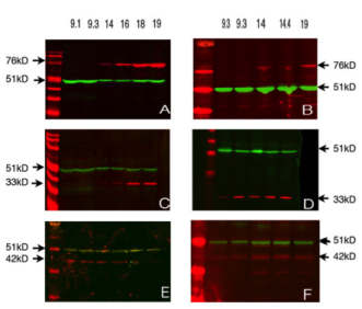 Clone 3/11A used to detect DAZL in ovarian and testicular tissue by Western Blot. Western analysis of 1st and 2nd trimester ovaries and testes. In both ovarian (A) and testicular (B) samples VASA (76 Kd) was not detectable in the 1st trimester samples but was present in those from the 2nd trimester. DAZL (33 Kd) was low/undetectable in 1st trimester ovaries (C) whereas it was detectable in ovarian samples from 2nd trimester and testicular samples from both 1st and 2nd trimester (D). OCT4 (42 Kd) was present in both ovaries (E) and testes (F) during both the 1st and 2nd trimester. The loading control in all cases was β-tubulin (51 Kd). Source: Anderson et al. 2007. BMC Dev Biol. 7:136. PMID: 18088417.