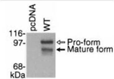 Western blot of lysates from COS-7 cells transfected with a pcDNA control and wild-type ADAM28 (WT). All samples were reduced with DTT and separated on a 7.5%(w/v) polyacrylamide gel. Proteins were transferred to nitrocellulose and immunoblotted with ADAM28 cytoplasmic domain antiserum.