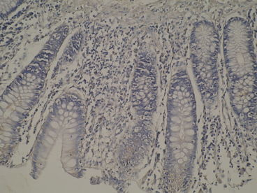 CYP8B1 normal colon mucosa