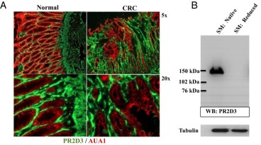 Adapted from Hsia LT, Ashley N, Ouaret D, Wang LM, Wilding J, Bodmer WF. Myofibroblasts are distinguished from activated skin fibroblasts by the expression of AOC3 and other associated markers. Proc Natl Acad Sci U S A. 2016 Apr 12;113(15):E2162-71. doi: 10.1073/pnas.1603534113. Epub 2016 Mar 28. PMID: 27036009; PMCID: PMC4839407. The MF marker mAb PR2D3 recognizes the AOC3 protein in human colonic lysates. (A) Immunofluorescence staining of cryostat sections of normal colon and CRC tissue using PR2D3 (green) for MFs and AUA-1 (red) to identify epithelial cells. (B) The immunoblot of human colonic smooth muscle (SM) lysate using mAb PR2D3 shows a band of about 150 kDa in a native (nonreduced) sample.