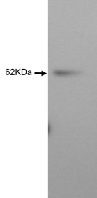 Western blot of Jurkat cell lysates using Anti-SBSN [Z47P1E7*F5] at a dilution of 1/2. A band of 62 KDa confirms specificity against the target of Suprabasin (SBSN).