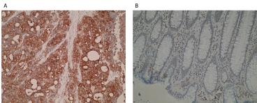 Immunohistochemistry images are showing a stronger immunostaining of TNFRSF18 (soluble form) in (A) primary colorectal cancer compared to (B) normal colon mucosa using anti-TNFRSF18 (soluble form) [T10P2H9*B9]. IHC was performed on formalin-fixed, paraffin-embedded tissue sections. Antigen retrieval step is required (microwave 10 min @ 950W in 0.01M sodium citrate buffer, pH 6.0).