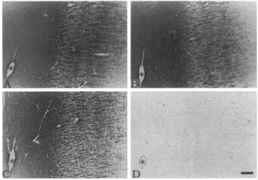 Clone MBP 2 used to detect myelinated structures in MS plaques by IHC-F. (C) recognized all myelinated structures in control brains, whereas no immunoreactivity was detected by EP antiserum (D). The identical vessel in the four photomicrographs is indicated by the asterisks. Source: Matsuo et al. 1997. Am J Pathol. 150(4):1253-66. PMID: 9094982.