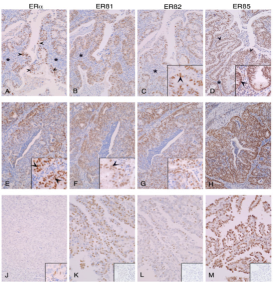 Clone 57/3 used to detect expression of ERβ2 in cancer tissue by IHC-P. Immunoexpression of ERs in endometrial cancers. Tissues were classified as well (A-D), moderately (E-H) or poorly (J-M) differentiated; ...immunoexpression of ERβ1, 2, 5 was readily detected (K. L, M). Inserts in panels K, L, and M show negative controls for ERβ1, ERβ2 and ERβ5 antibodies respectively generated using primary antibodies pre-absorbed with specific peptides used for immunisation. Asterisks (*) label the stromal compartment that was well defined in the well differentiated cancers. Source: Collins et al. 2009. BMC Cancer. 9:330. PMID: 19758455.