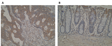 Immunohistochemistry images are showing a strong cytoplasmic positivity of DRAM2 in (A) primary colorectal cancer whilst weak staining is observed in (B) normal colon mucosa, using Anti-DRAM2 [VAB24-P1C8*A3]. IHC was performed on formalin-fixed, paraffin-embedded tissue sections. Antigen retrieval step is required (microwave 10 min @ 950W in 0.01M sodium citrate buffer, pH 6.0).