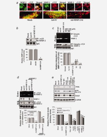 Adapted from Chetty C, Lakka SS, Bhoopathi P, Rao JS. MMP-2 alters VEGF expression via alphaVbeta3 integrin-mediated PI3K/AKT signaling in A549 lung cancer cells. Int J Cancer. 2010 Sep 1;127(5):1081-95. doi: 10.1002/ijc.25134. PMID: 20027628. (A) A549 cells were plated in 8-well chamber slides and infected with mock or 100 MOI of either Ad-SV or Ad-MMP-2-Si for 48 h. Immunocytochemistry was performed for co-localization (yellow) of MMP-2 (green) and integrin-αVβ3 (Red) using specific antibodies. (B) A549 cells were infected with mock or 100 MOI of either Ad-SV or Ad-MMP-2-Si for 48 h, and proteins were immunoprecipitated with an anti-integrin-αVβ3 antibody. Western blot analysis was performed for MMP-2 using immunoprecipitated proteins. Protein band intensities were quantified by densitometric analysis using ImageJ software (National Institutes of Health). The levels of MMP-2 protein were normalized to protein level in mock infected A549 cells. Columns: mean of triplicate experiments; *p<0.01, significant difference from Ad-SV control. (C) After 36 h of Ad-MMP-2-Si infection, A549 cells were incubated with a MMP-2 specific inhibitor (ARP-100; at a concentration of 50 and 100 μM) for 12 h. Proteins were immunoprecipitated with anti-integrin-αVβ3 antibody and performed gelatin zymography and western blot for MMP-2. Columns: mean of triplicate experiments; *p<0.01, significant difference from Ad-SV/solvent control. (D) After 24 h of Ad-MMP-2-Si infection, A549 cells were incubated with rhMMP-2 (25 ng/mL) for 24 h. Gelatin zymography and western blot analysis was performed for MMP-2 from immunoprecipitated protein samples with an anti-integrin-αVβ3 antibody. Protein band intensities were quantified by densitometric analysis using ImageJ software (National Institutes of Health). The levels of MMP-2 protein were normalized to protein level in mock infected A549 cells. Columns: mean of triplicate experiments; *p<0.01, significant difference from Ad-SV control; **p<0.01 si